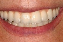 Instituciones anuncian jornada gratuita de implantes dentales