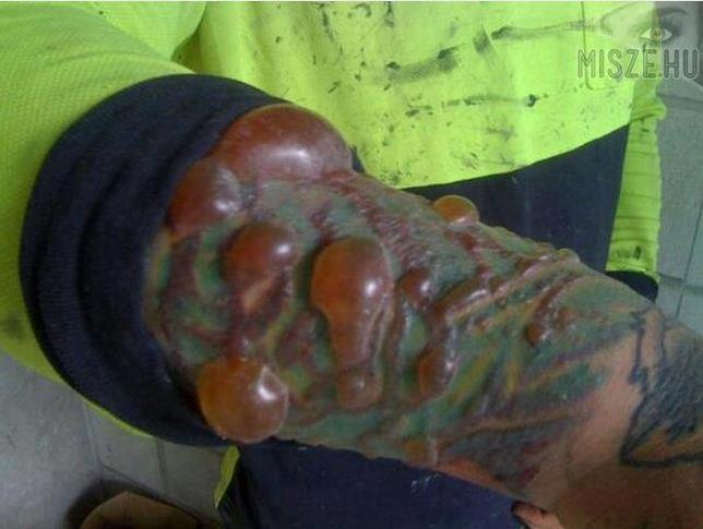 ¡ATENCION! Cuidado con los tatuajes….