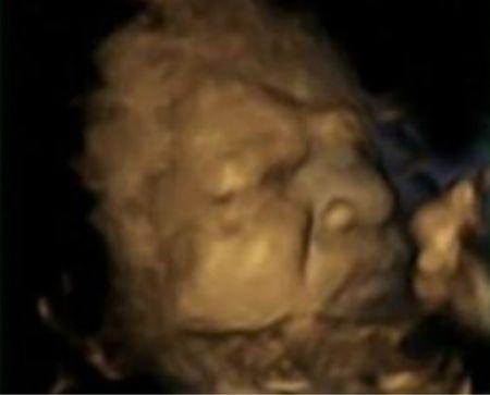 Bebés practican el llanto y la risa en útero de la madre. ¡Qué tierno!