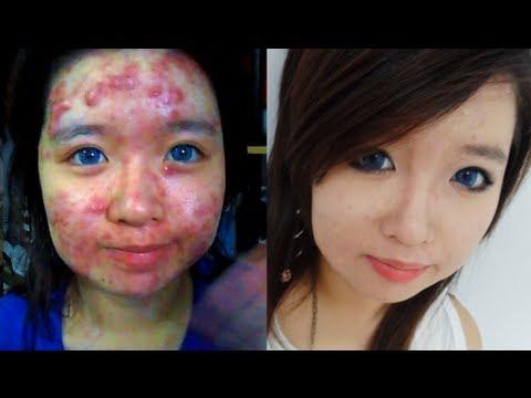 """Joven muestra en vídeo cómo """"transforma su cara llena de acné en rostro perfecto. Vídeo"""