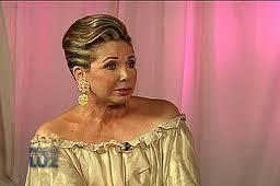 Yadira Morel admite se estiró la cara con cirugía facial. VIDEO