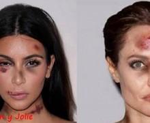FOTOS: utilizó rostros famosos para su campaña contra la violencia doméstica