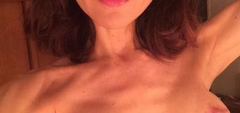 Así quedaron los senos de Lorena Meritano después del cáncer…