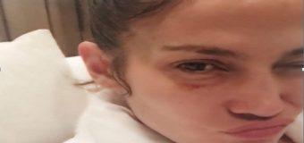 Jennifer López recibe golpe durante el trabajo