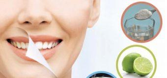¿Es posible blanquear los dientes con remedios naturales?