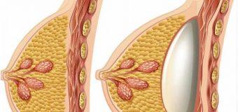 Todo lo que debes saber de implantes de seno