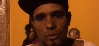 """VIDEO: Hombre denuncia mujer lo agredió """"porque quería estar con él a la mala"""""""